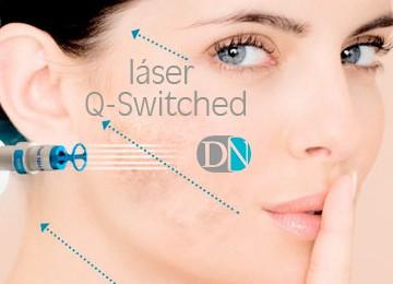 Láser Q-Switched para párpados, ojeras, cuello, escote, manos, cicatrices y manchas