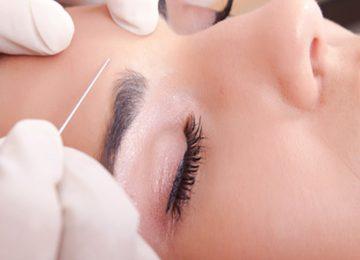 Toxina Botulínica perfecta para las arrugas de expresión